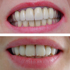 all ceramic crowns before and after