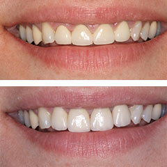 replacement of porcelain veneers with porcelain crowns