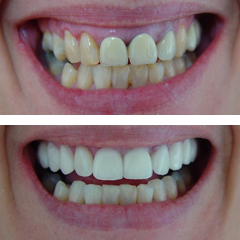 all ceramic crowns and porcelain veneers