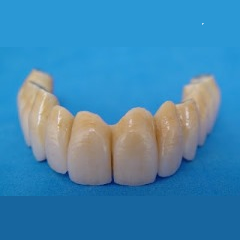 Metalceramic implant supported restoration