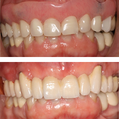 Replacement of a partial denture with an implant supported fixed bridge