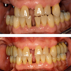 Replacement of posterior missing teeth with dental implants for a perio patient