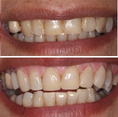 Composite venneers on 6 anterior teeth