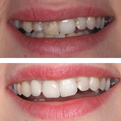 metalceramic crowns
