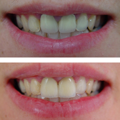 metal ceramic crowns before and after