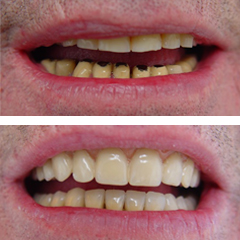 replacement of metal ceramic crowns in lower anterior teeth