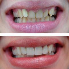 metal ceramic crowns on anterior teeth