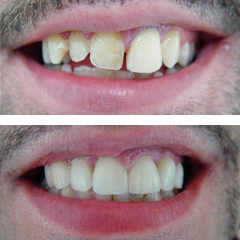 metalceramic crowns on anterior teeth