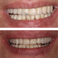 denturesbefore-after3