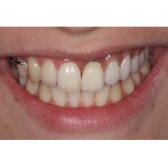 Smile of a patient with partial denture