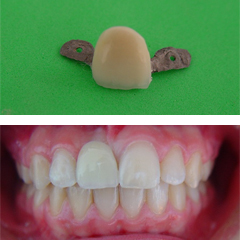 anterior missing teeth and a maryland bridge