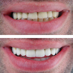 replacement of fixed partial dentures