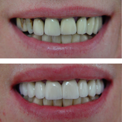 replacement of fixed partial dentures, before and after