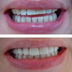 allceramic crowns