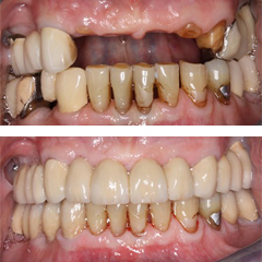 fixed partial denture before and after