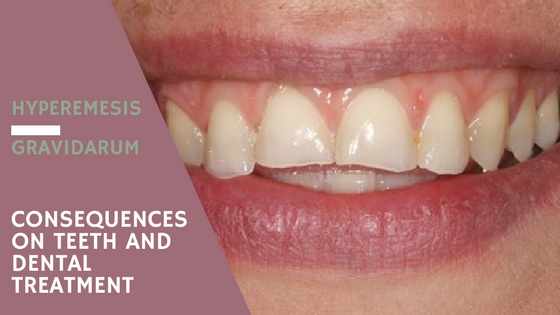 hyperemesis gravitarum-  consequences in teeth and dental treatment