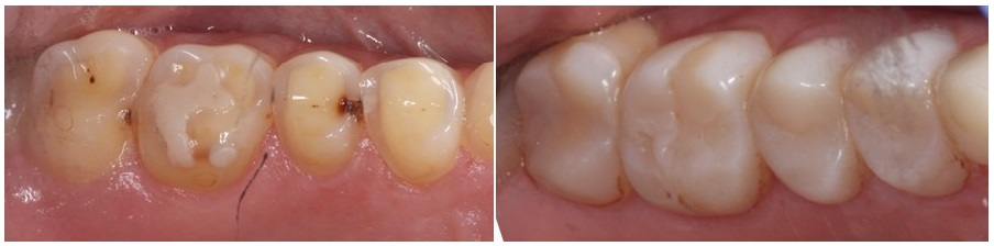 teeth erosion, before and after, the sandwich technique
