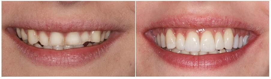 teeth erosion, before and after, the sandwich technique, adhesive additive rehabilitations