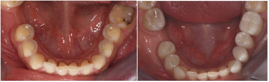 teeth erosion, before and after, occlusal view