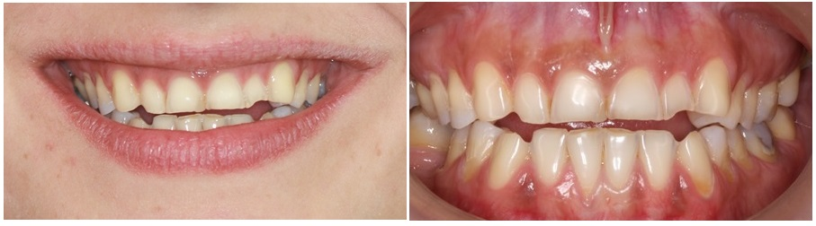 composite built ups on posterior teeth, to increase the vertical dimension of occlusion