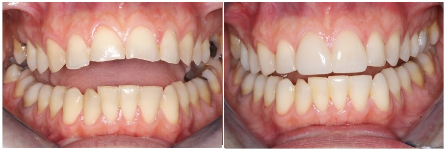 Before and after prosthetic rehabilitation of eroded teeth with bonded restorations