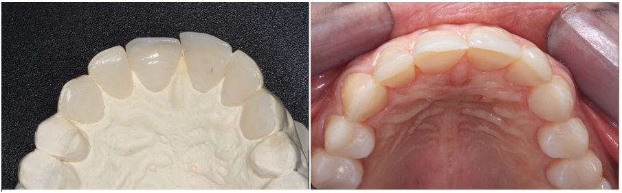 Palatal composite veneers for anterior eroded teeth