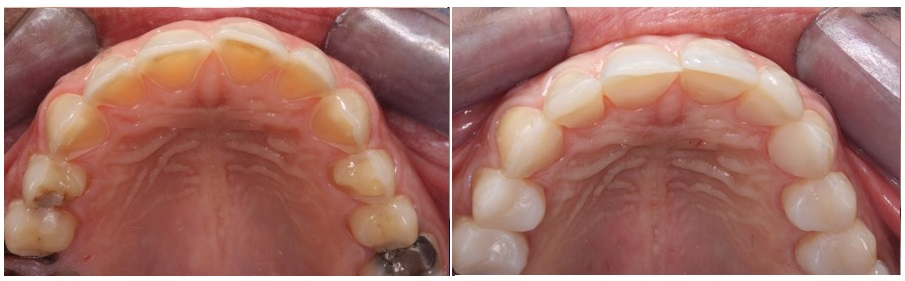 Palatal composite veneers for anterior eroded teeth-Before and after