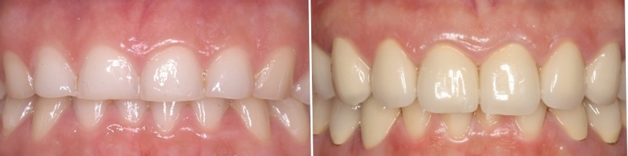 Restoration of eroded teeth with galvano-ceramic crowns