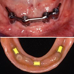 Mandibular overdenture with bar attachment