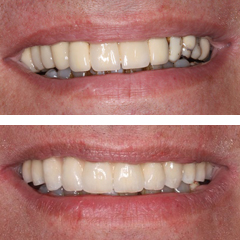 Replacement of tooth supported metal ceramic with an implant supported metalceramic prosthesis