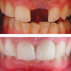 Missing central incisor and treatment with a dental implant