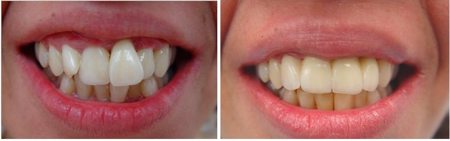 Prosthetic and esthetic treatment in perio patient