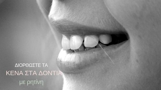 με τα δόντια και τα ραντεβού