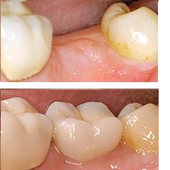 Replacement of a missing molar with a dental implant