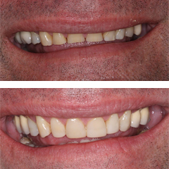 smiledesign-beforeafter1