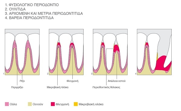 periodontist Ioannis Theodoropoulos