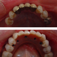 Extraction of natural teeth and delivery of a hybrid restoration in one day