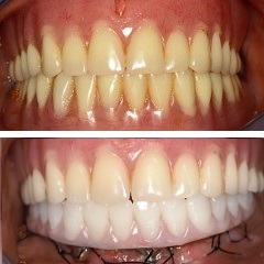 Replacement of lower denture with a hybrid restoration in one day