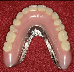 Maxillary implant supported overdenture
