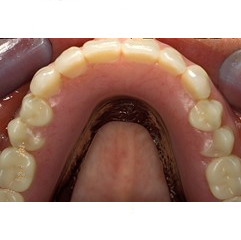 Maxillary implant supported overdenture in place