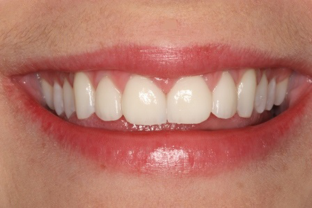 Veneers, Before
