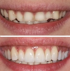 veneersbefore after2