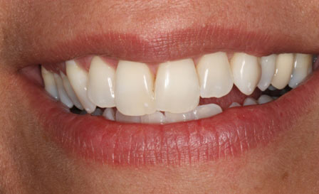 Whitening, Before