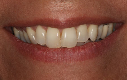 Whitening, After